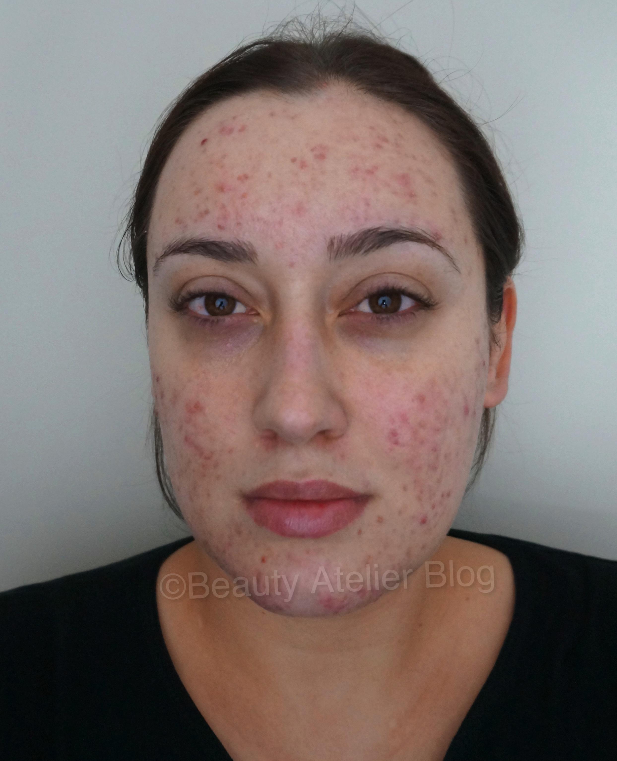 NeoCutis Skincare Products - Atlanta Facial Plastic Surgery